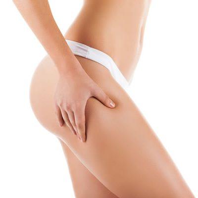 bigstock-Checking-cellulite-woman-hip--67355851