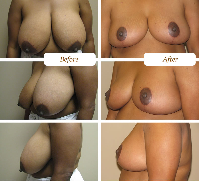 breast-reduction-procedure
